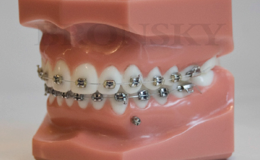 Bronsky Orthodontics NYC